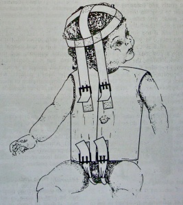 Nẹp kiểu mũ và áo. Ngoài ra áo có thể ghim vào tã của trẻ