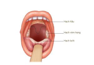 Hình 22.5 Hạch họng Mặt trước của khoang miệng cho thấy các hạch họng. Các phần của vòm miệng được cắt đi (các đường đứt) để bộc lộ hạch hầu
